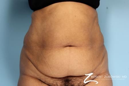 Tummy Tuck: Patient 18 - Before Image 1