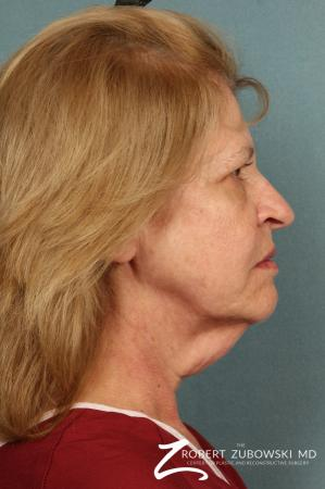 Facelift: Patient 23 - Before and After Image 2