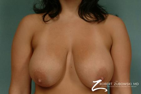 Breast Lift: Patient 7 - Before Image
