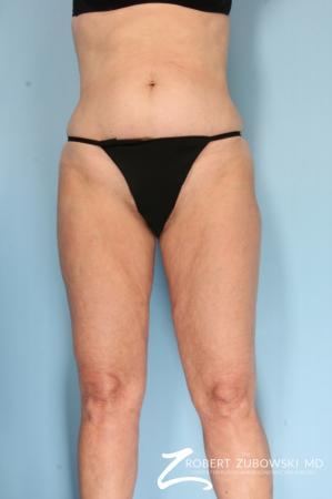 Liposuction: Patient 46 - After Image