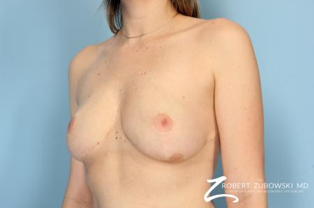 Breast Lift And Augmentation: Patient 9 - After Image 2