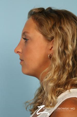 Rhinoplasty: Patient 22 - After Image 2