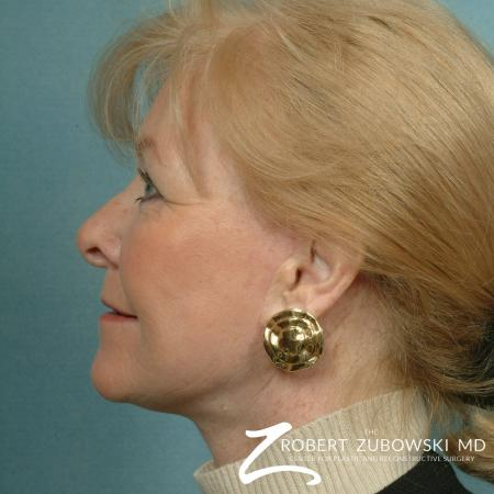 Facelift: Patient 16 - After Image 2