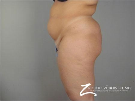 Liposuction: Patient 41 - Before Image 2