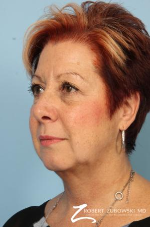 Blepharoplasty: Patient 13 - Before and After Image 2