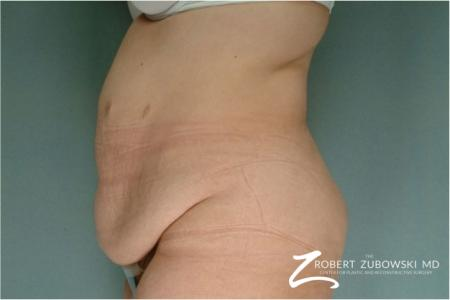 Tummy Tuck: Patient 1 - Before and After Image 2