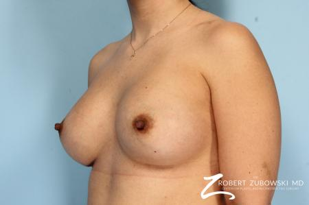 Breast Augmentation: Patient 35 - After Image 2