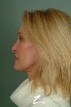 Facelift: Patient 12 - After Image 2