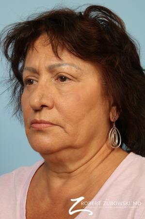 Blepharoplasty: Patient 31 - After Image 2