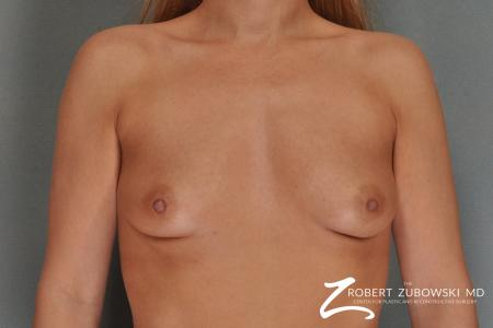 Breast Augmentation: Patient 13 - Before Image 1