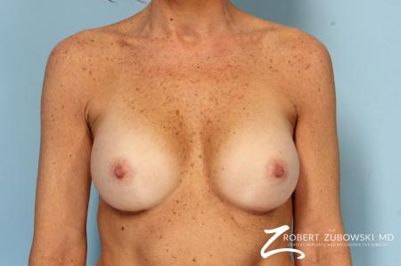 Breast Augmentation: Patient 39 - After Image 1