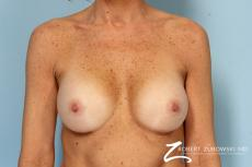 Breast Augmentation: Patient 39 - After Image