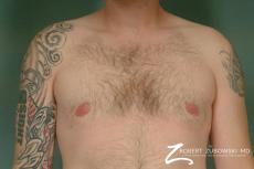 Gynecomastia: Patient 2 - After Image