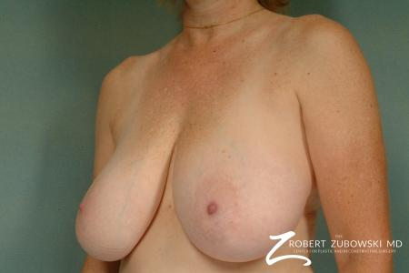Breast Reduction: Patient 23 - Before and After Image 2