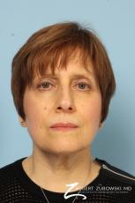 Blepharoplasty: Patient 14 - After Image