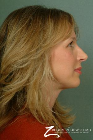 Rhinoplasty: Patient 10 - After Image 3