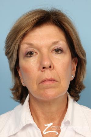 Facelift: Patient 18 - After Image 1