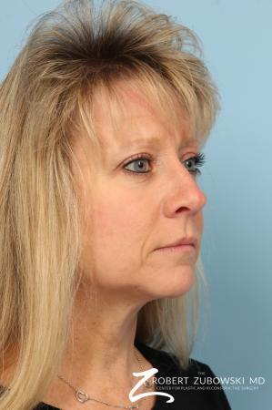 Blepharoplasty: Patient 28 - After Image 2