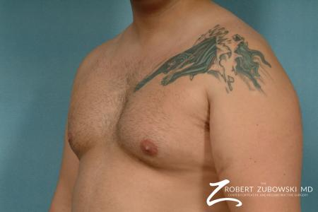 Gynecomastia: Patient 9 - Before and After Image 2