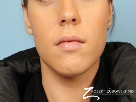 Permanent Lip Enhancement: Patient 2 - After Image