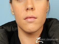 Permanent Lip Enhancement: Patient 2 - After Image