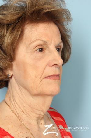 Blepharoplasty: Patient 36 - After Image 2