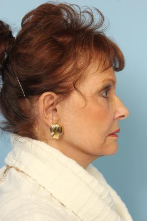 Blepharoplasty: Patient 12 - After Image 2