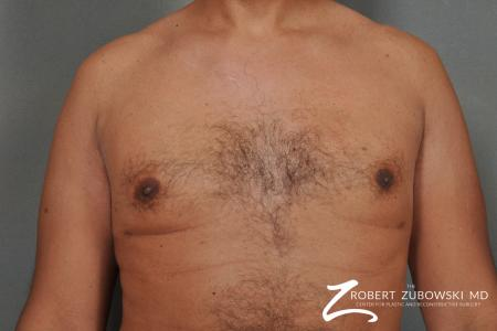 Gynecomastia: Patient 8 - After Image