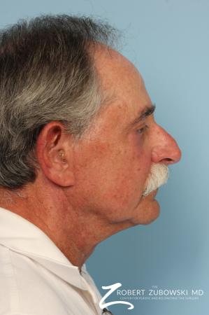 Neck Lift: Patient 6 - After Image 2