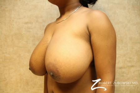Breast Reduction: Patient 9 - Before and After Image 2