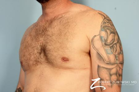 Gynecomastia: Patient 10 - After Image 2