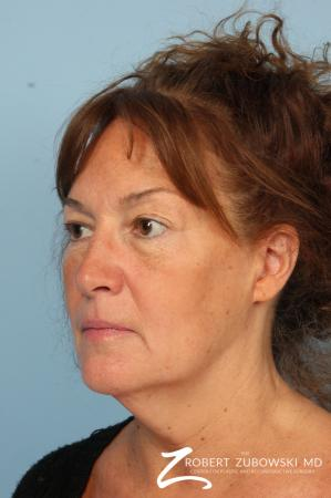 Facelift: Patient 25 - Before and After Image 2