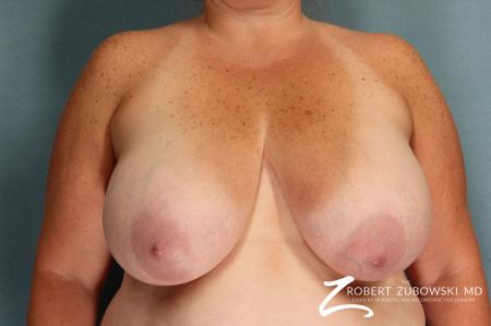 Breast Lift And Augmentation: Patient 10 - Before Image