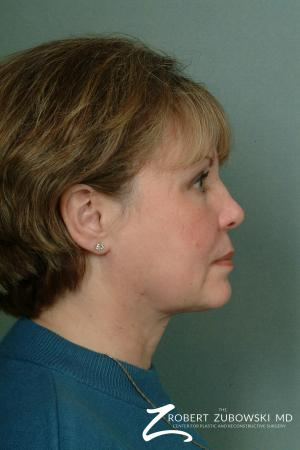 Chin Augmentation: Patient 2 - After Image 2