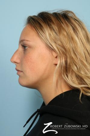 Rhinoplasty: Patient 23 - Before and After Image 2