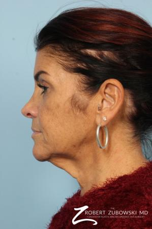 Neck Lift: Patient 10 - Before and After Image 3