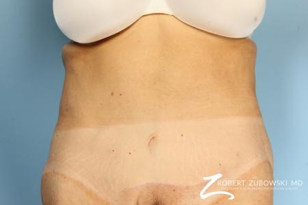 CoolSculpting®: Patient 2 - After Image