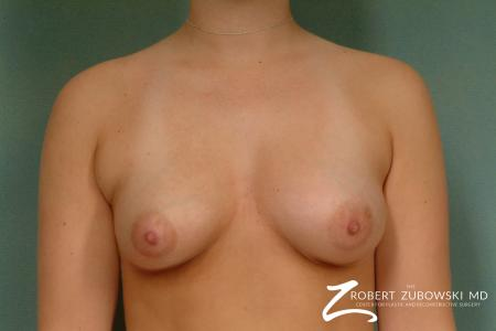 Breast Augmentation: Patient 23 - Before Image 1