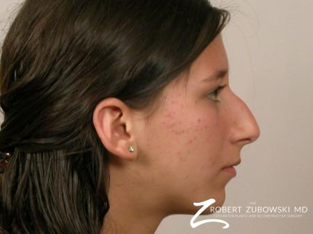 Rhinoplasty: Patient 8 - Before and After Image 2