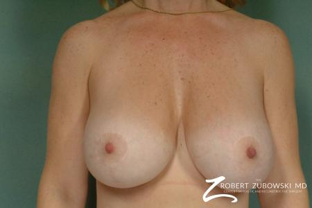 Breast Lift And Augmentation: Patient 1 - After Image 1