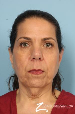 Chin Augmentation: Patient 4 - Before Image