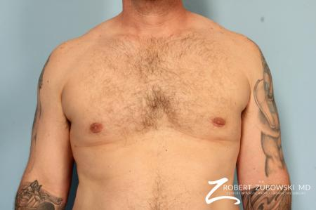 Gynecomastia: Patient 10 - After Image 1