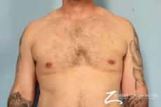 Gynecomastia: Patient 10 - After Image