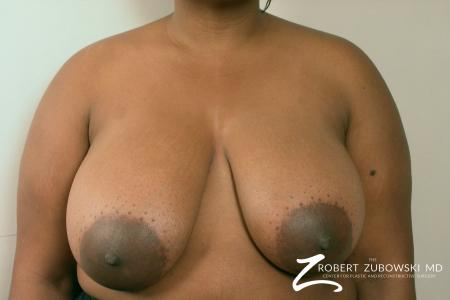 Breast Reduction: Patient 3 - Before Image