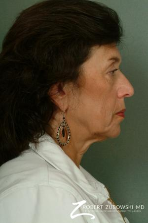 Facelift: Patient 6 - Before and After Image 2
