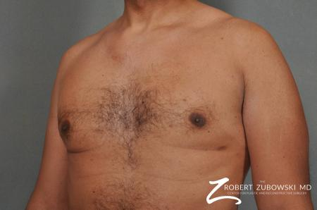 Gynecomastia: Patient 8 - After Image 2