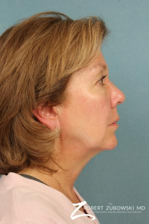Facelift: Patient 18 - Before and After Image 2