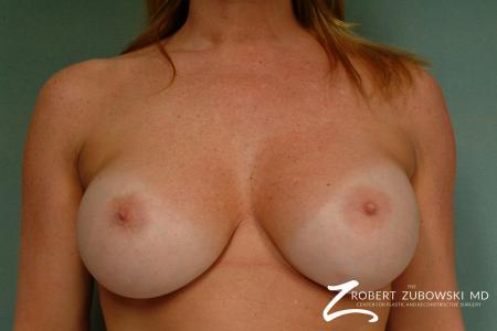 Breast Augmentation: Patient 31 - After Image 1