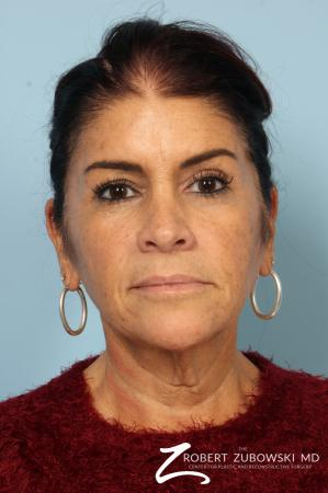 Neck Lift: Patient 10 - Before Image