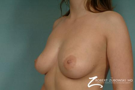Breast Augmentation: Patient 20 - Before and After Image 2